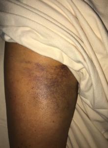 natural healing-hamstring avulsion