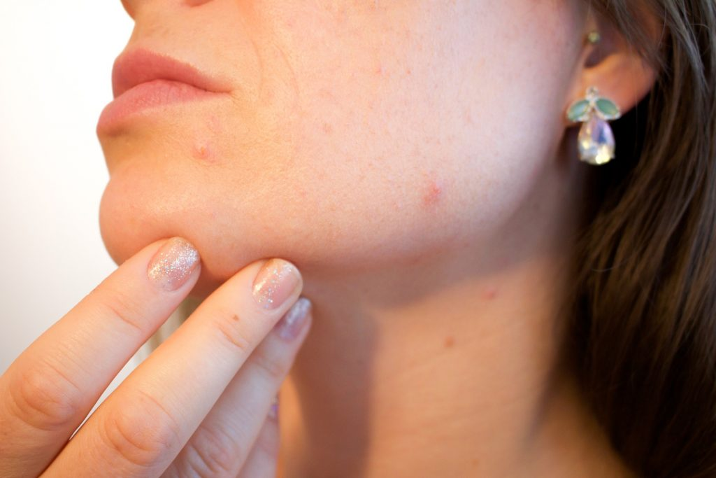 PCOS and acne
